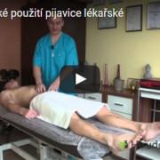 Profylaktické použití pijavice lékařské
